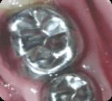 san-antonio-dental-crown