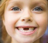 san-antonio-dental-extractions