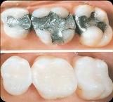 san-antonio-dental-filling
